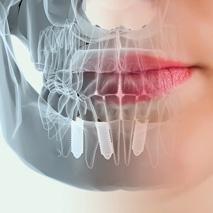 Implantologia-dental-Sonrisalud