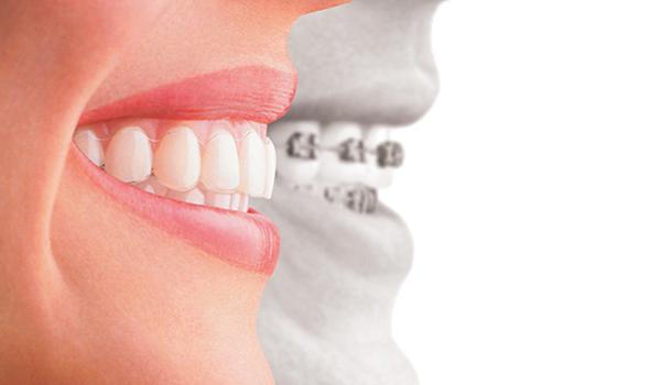 Ortodoncia_InvisalignVSBrackets