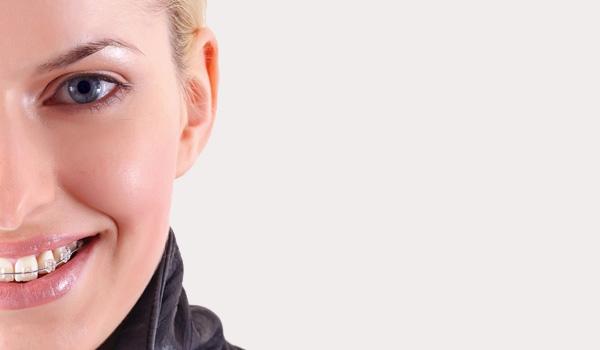 Estética-dental-Sonrisalud