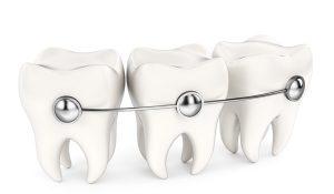 ortodoncia-autoligado-sonrisalud