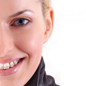 Ortodoncia-Estética-Sonrisalud