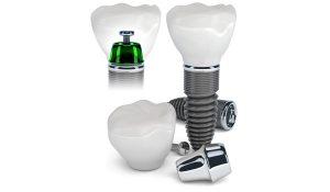 Tipos-de-implantes-Sonrisalud-01