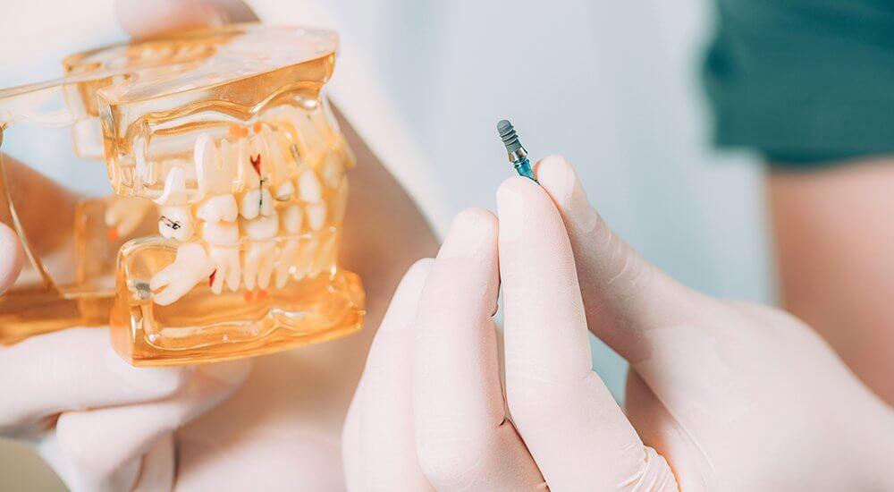 Implantes dentales en el mismo día