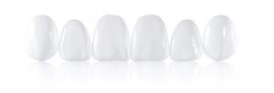 Carillas-dentales-Sonrisalud