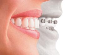 Ortodoncia-Sonrisalud
