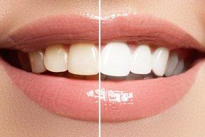 ganador blanqueamiento dental eibar sorteo mayo