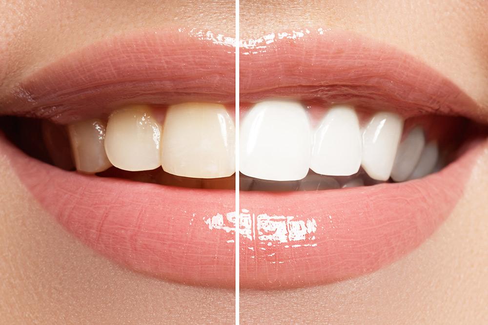 Ganador Blanqueamiento Dental Eibar