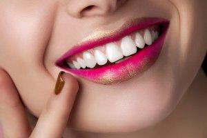 tratamientos para mejorar la sonrisa en sonrisalud