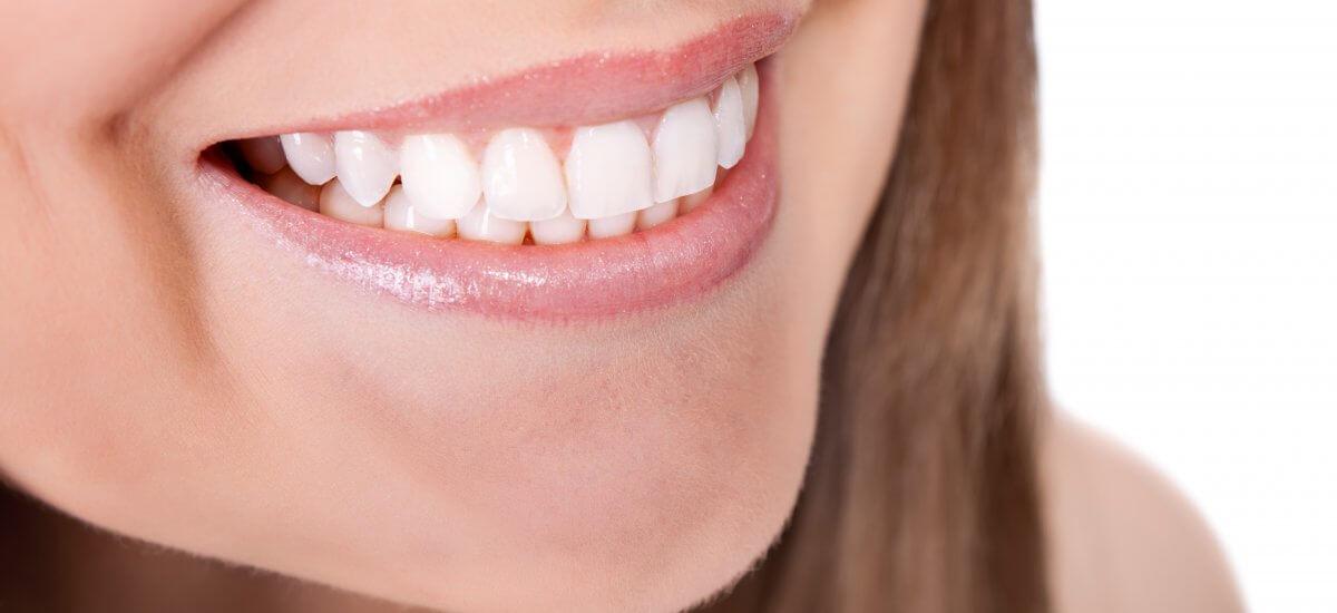 ¿Cuánto tardo en hacer un tratamiento de estética dental?