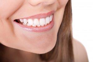 con cuánta antelación se debe hacer un tratamiento de estética dental en sonrisalud