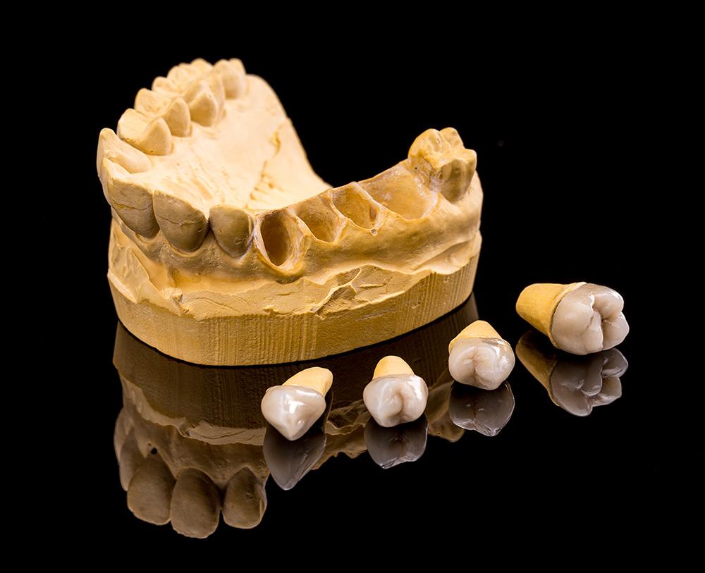 Pérdida de hueso en los dientes
