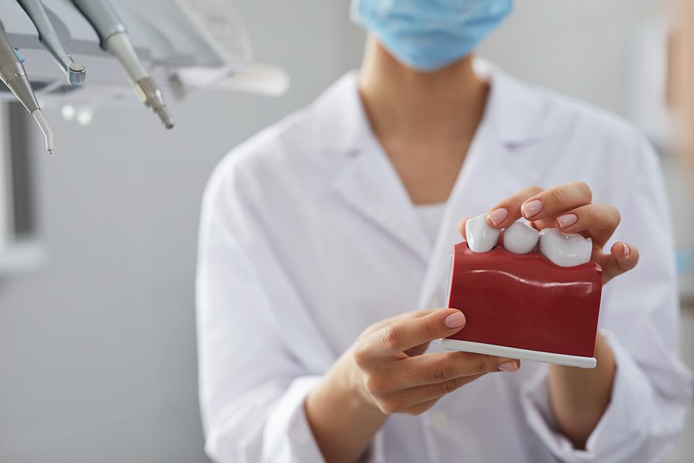 Cuidados para los implantes dentales