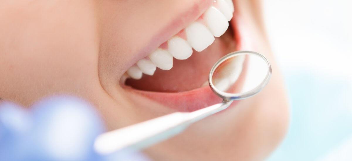 ¿Por qué es imprescindible la revisión dental tras las vacaciones?